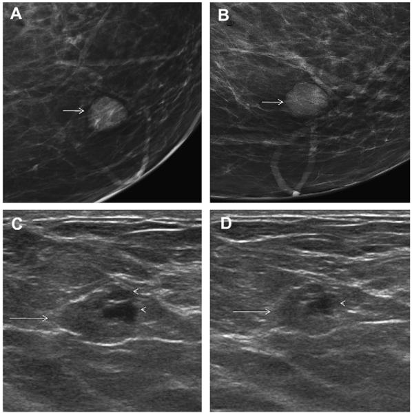 Cystic Breast Masses And The Acrin 6666 Experience Abstract