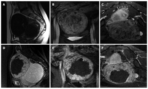 High Intensity Focused Ultrasound In Clinical Tumor Ablation Abstract Europe Pmc