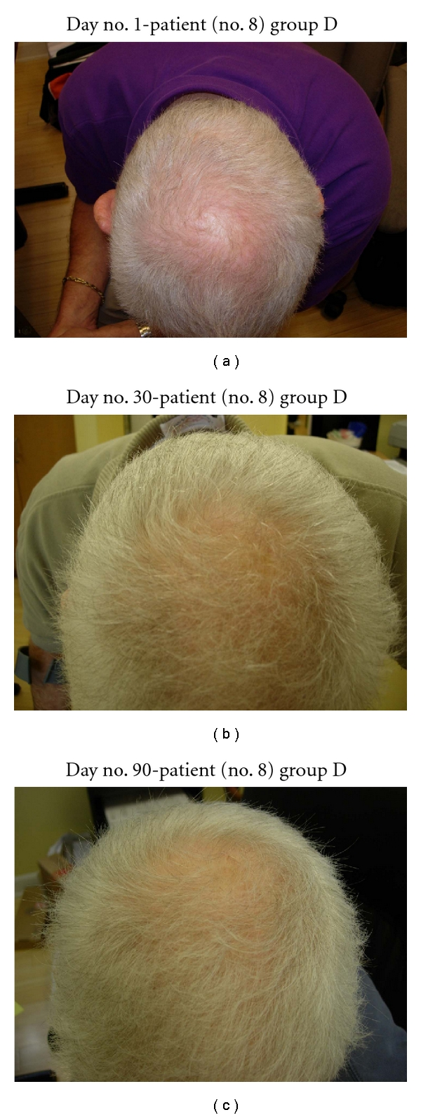 Pilot Study Of 15 Patients Receiving A New Treatment Regimen For Androgenic Alopecia The Effects Of Atopy On Aga Abstract Europe Pmc