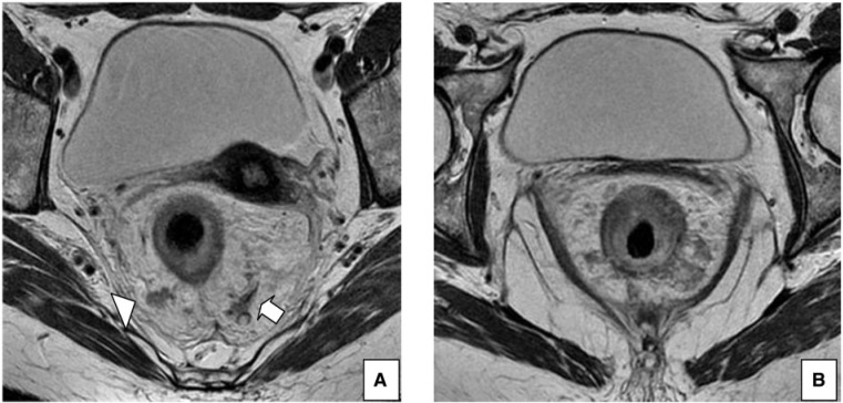 Rectal cancer in mri, Rectal cancer and colon cancer, REVIEW-URI