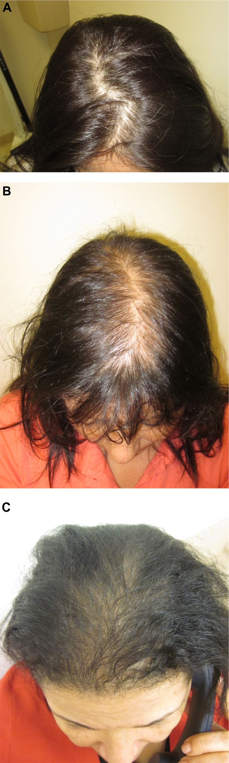 Female Pattern Alopecia Current Perspectives Abstract Europe Pmc