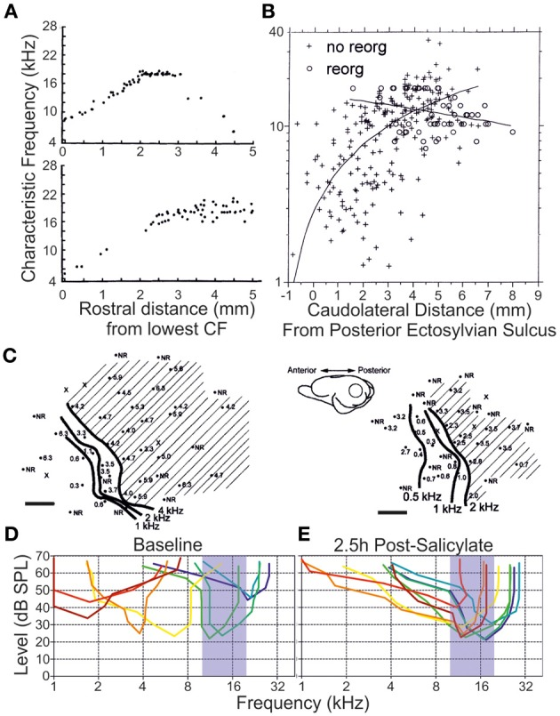Insult Induced Adaptive Plasticity Of The Auditory System