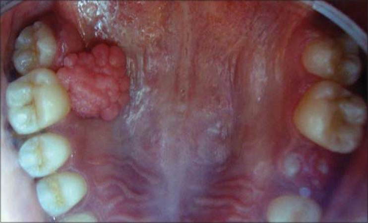 toxine botulique glandes salivaires can a throat papilloma be cancerous