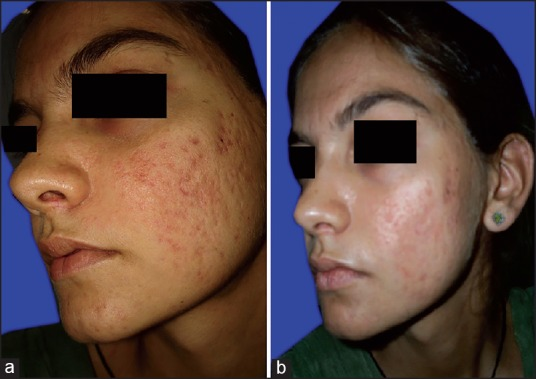 Efficacy Of Modified Jessner S Peel And 20 Tca Versus 20 Tca Peel Alone For The Treatment Of Acne Scars Abstract Europe Pmc