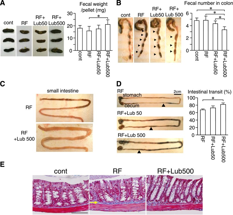 Alteration Of The Intestinal Environment By Lubiprostone Is Associated With Amelioration Of Adenine Induced Ckd Abstract Europe Pmc