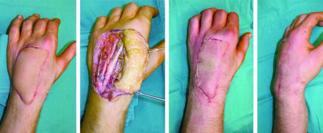 Enhancing Aesthetic Outcomes Of Soft Tissue Coverage Of The Hand Abstract Europe Pmc