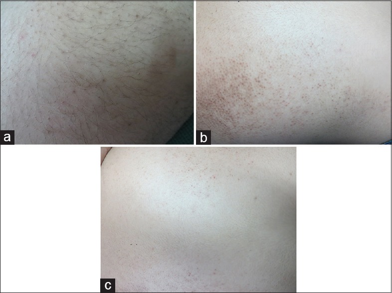 Growing from one multiple follicle hairs Infected Ingrown
