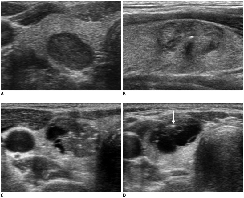 Ultrasonography Diagnosis And Imaging Based Management Of Thyroid