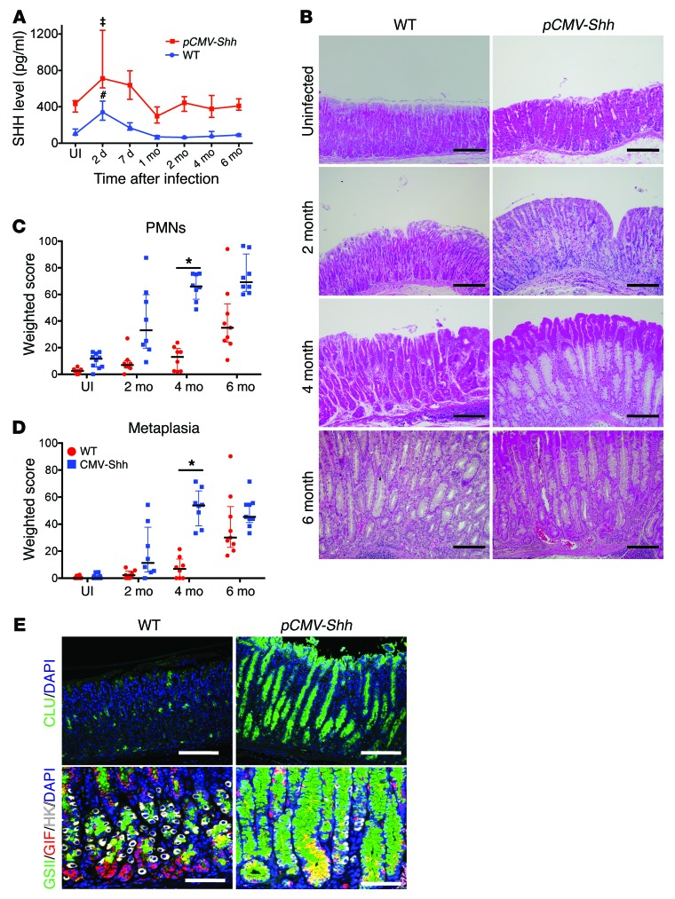 Schlafen 4 Expressing Myeloid Derived Suppressor Cells Are Induced