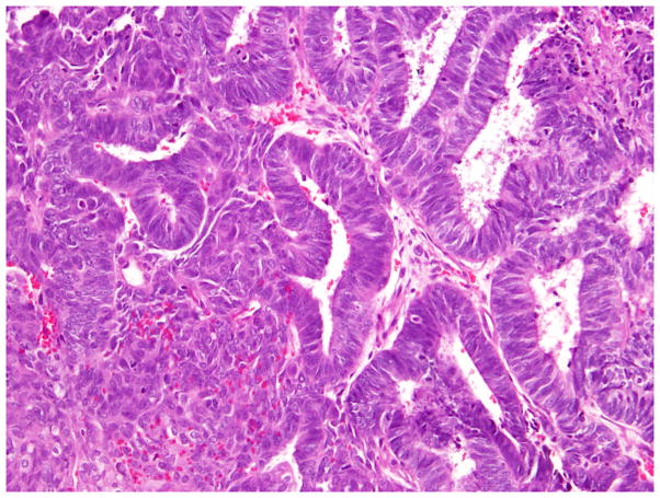 Morphological And Immunohistochemical Reevaluation Of Tumors Initially Diagnosed As Ovarian Endometrioid Carcinoma With Emphasis On High Grade Tumors Abstract Europe Pmc