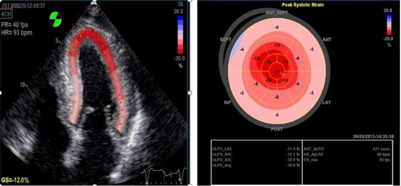 Wild Type Transthyretin Cardiac Amyloidosis Novel Insights From Advanced Imaging Abstract Europe Pmc
