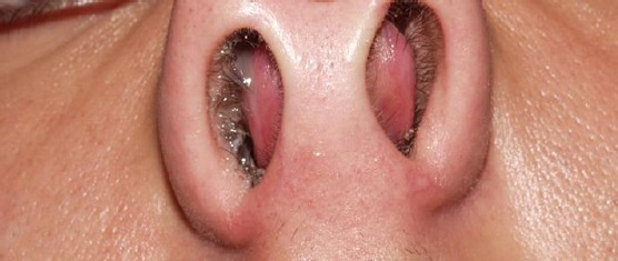 The Impact Of The Nasal Trauma In Childhood On The Development Of