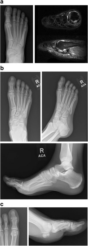 Injuries To The Great Toe Abstract Europe Pmc