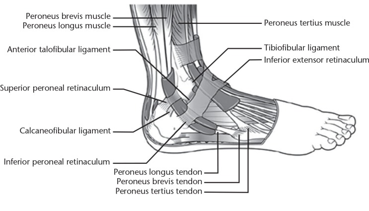 Peroneal Tendon Disorders Abstract Europe Pmc