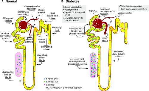 Therapeutic Considerations For Antihyperglycemic Agents In