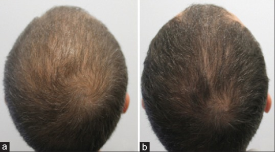 Mesotherapy With Dutasteride In The Treatment Of Androgenetic Alopecia Abstract Europe Pmc