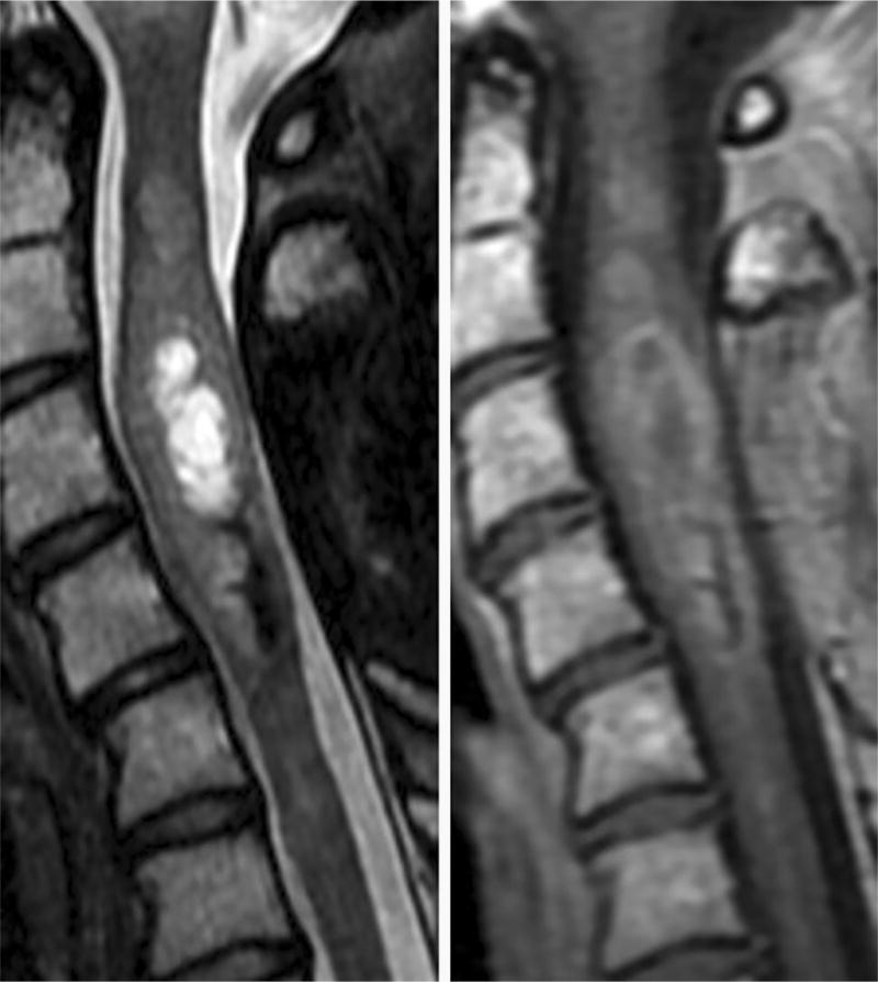 Spinal Cord Ependymoma A Review Of The Literature And Case Series Of Ten Patients Abstract Europe Pmc Myxopapillary ependymoma is dealt with separately in the myxopapillary ependymoma article. europe pmc