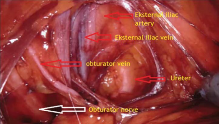 Robotic Perineal Radical Prostatectomy And Robotic Pelvic Lymph