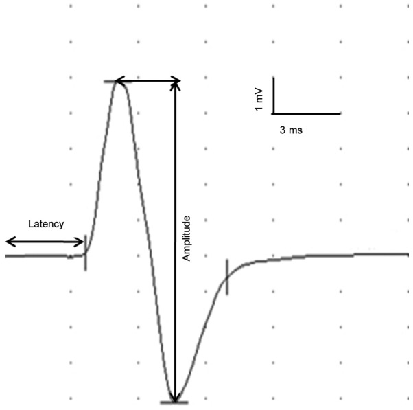Effective Robotic Assistive Pattern Of Treadmill Training For