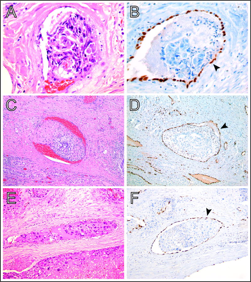 Utility Of Erg Immunohistochemistry For Evaluation Of Lymphovascular Invasion In Testicular Germ Cell Tumors A Retrospective Pilot Study Abstract Europe Pmc