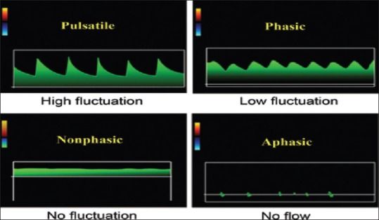 A Review Of Medical Doppler Ultrasonography Of Blood Flow In General And Especially In Common Carotid Artery Abstract Europe Pmc
