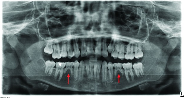 Diagnosis Of Tooth Agenesis In Childhood And Risk For Neoplasms In Adulthood Abstract Europe Pmc
