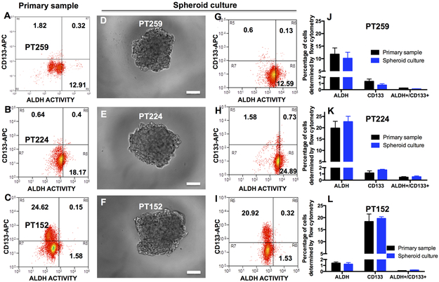 Personalized Medicine Based Approach To Model Patterns Of Chemoresistance And Tumor Recurrence Using Ovarian Cancer Stem Cell Spheroids Abstract Europe Pmc
