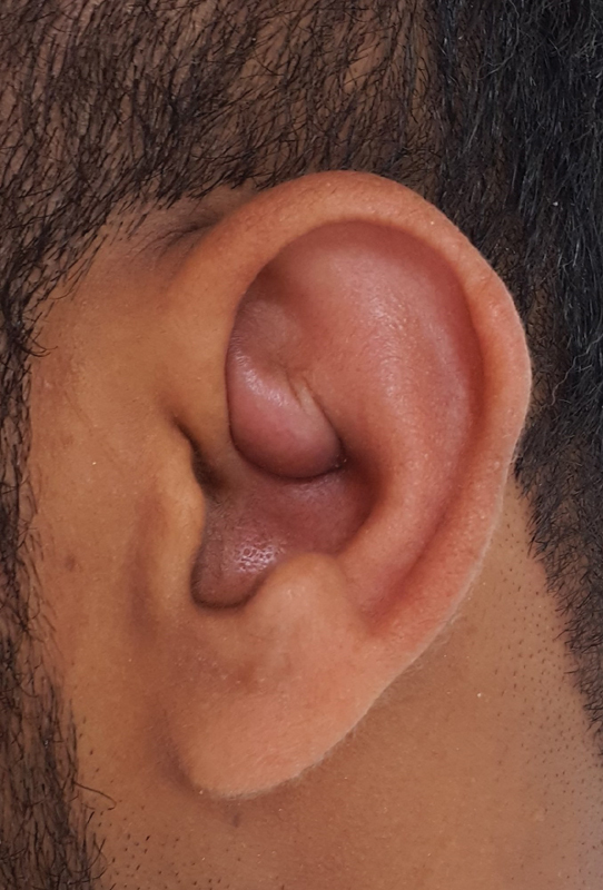 Incision and Drainage with Daily Irrigation for the Treatment of Auricular  Pseudocyst. - Abstract - Europe PMC