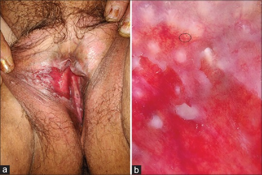 pearly papules in women