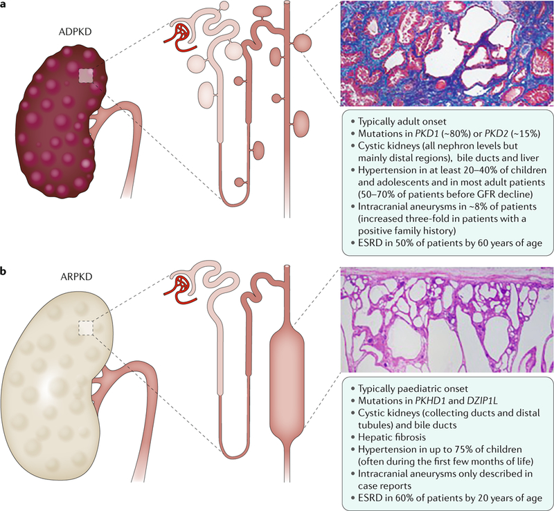 Polycystic Kidney Disease Abstract Europe Pmc